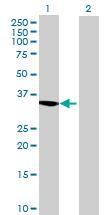 Western blot - CCDC108 antibody (ab72745)