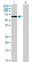 Western blot - Dynein intermediate chain 2 antibody (ab72746)