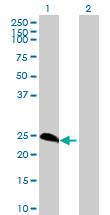 Western blot - METT5D1  antibody (ab72762)
