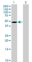 Western blot - ALDH3B1 antibody (ab72772)