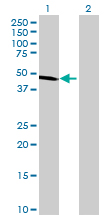 Western blot - ALDH9A1 antibody (ab72773)