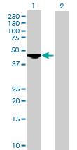 Western blot - DLST antibody (ab72790)
