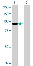 Western blot - Dystrobrevin alpha antibody (ab72793)