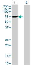 Western blot - LGTN antibody (ab72794)