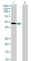 Western blot - ENO1P antibody (ab72801)