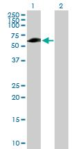 Western blot - Ellis van Creveld syndrome antibody (ab72808)