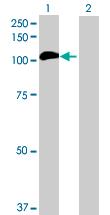 Western blot - FANCB antibody (ab72810)