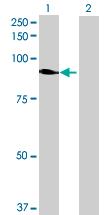 Western blot - VPS52 antibody (ab72812)