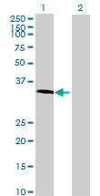 Western blot - TCEAL2 antibody (ab72815)