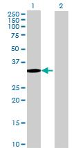 Western blot - C20orf70 antibody (ab72816)