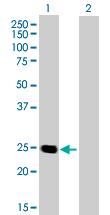 Western blot - Aspartate beta hydroxylase antibody (ab72846)