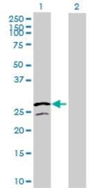Western blot - ATP5F1 antibody (ab72848)