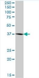 Western blot - BCAT2 antibody (ab72850)