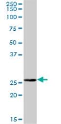 Western blot - BPHL antibody (ab72851)