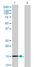 Western blot - C20orf79 antibody (ab72860)