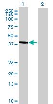 Western blot - PABPC5 antibody (ab72861)
