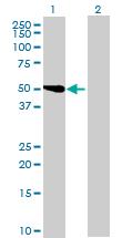 Western blot - MGC20470 antibody (ab72868)