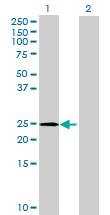 Western blot - MGC39497 antibody (ab72870)