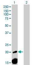 Western blot - A2ML1 antibody (ab72872)