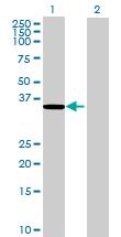 Western blot - ZADH1 antibody (ab72875)