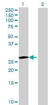 Western blot - IDI2 antibody (ab72879)