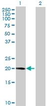 Western blot - RP11-484I6.3 antibody (ab72928)