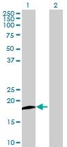 Western blot - PFDN2 antibody (ab72933)