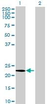 Western blot - CGB5 antibody (ab72934)