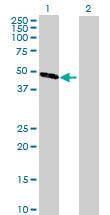 Western blot - CPA5 antibody (ab72935)