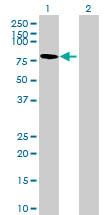 Western blot - GGN antibody (ab72936)