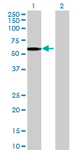 Western blot - PFKFB2 antibody (ab72937)