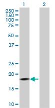 Western blot - PIGH antibody (ab72938)