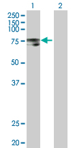 Western blot - PLOD2 antibody (ab72939)