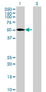 Western blot - PNLIPRP1 antibody (ab72940)