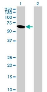 Western blot - PRCP antibody (ab72942)