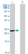 Western blot - Pregnancy specific beta 1 glycoprotein 11 antibody (ab72944)