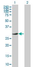 Western blot - PYCR1 antibody (ab72953)