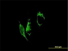Immunocytochemistry/ Immunofluorescence - PYCR1 antibody (ab72953)