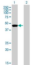 Western blot - Ribonuclease Inhibitor antibody (ab72970)