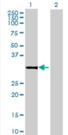 Western blot - Zmat2 antibody (ab72974)