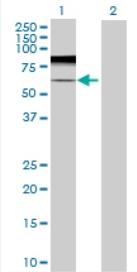 Western blot - ARSK antibody (ab72976)