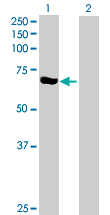 Western blot - CNKSR3 antibody (ab72978)