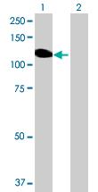 Western blot - Angiomotin like 1 antibody (ab72979)