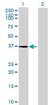 Western blot - RLBP1L1  antibody (ab72981)