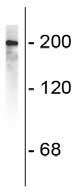 Western blot - 200 kD Neurofilament Heavy antibody (ab72996)