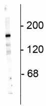 Western blot - NMDAR2A antibody (ab73000)
