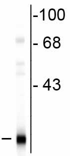 Western blot - PBP antibody (ab73017)