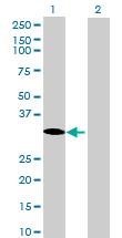 Western blot - THAP8 antibody (ab73032)