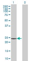 Western blot - U2AF1L3 antibody (ab73033)