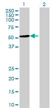 Western blot - CYP4Z1 antibody (ab73036)
